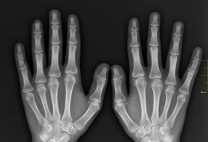 xray of hands